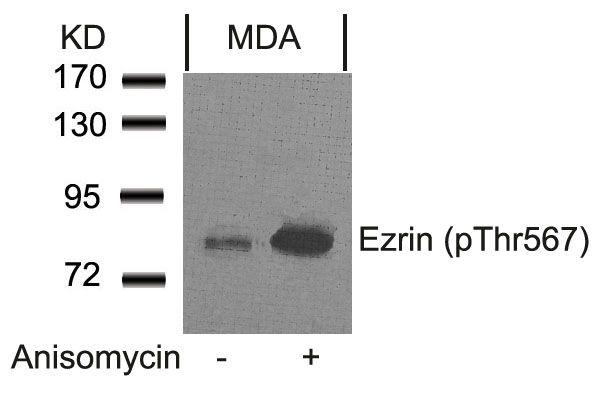 Phospho-Ezrin (Thr567) Antibody in Western Blot (WB)