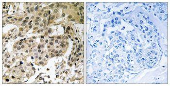 Phospho-HP1 alpha (Ser92) Antibody in Immunohistochemistry (Paraffin) (IHC (P))
