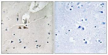 Phospho-Ephrin B1/B2/B3 (Tyr324) Antibody in Immunohistochemistry (Paraffin) (IHC (P))