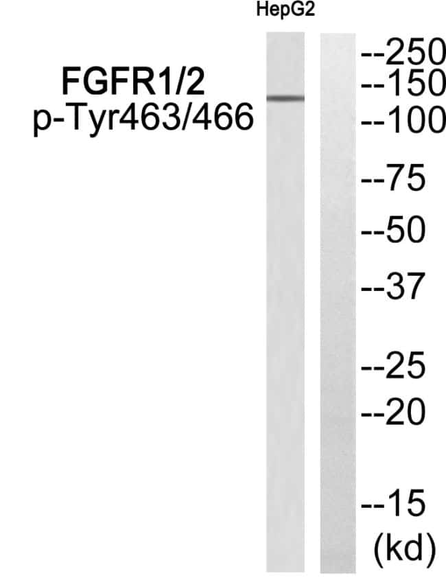 Phospho-FGFR1/FGFR2 (Tyr463, Tyr466) Antibody in Western Blot (WB)