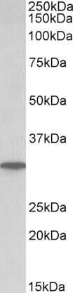 PNP Antibody in Western Blot (WB)