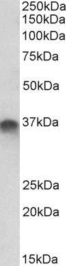 STX11 Antibody in Western Blot (WB)