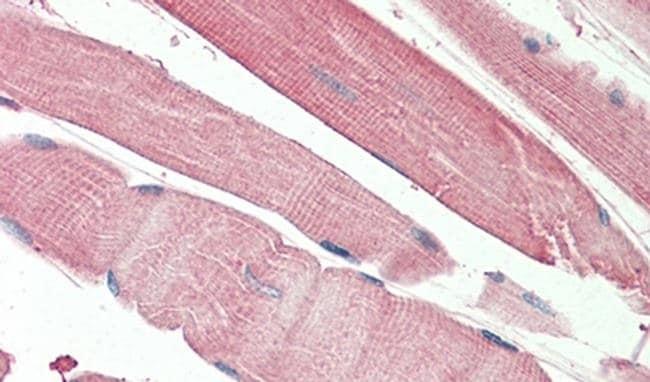 THNSL2 Antibody in Immunohistochemistry (IHC)