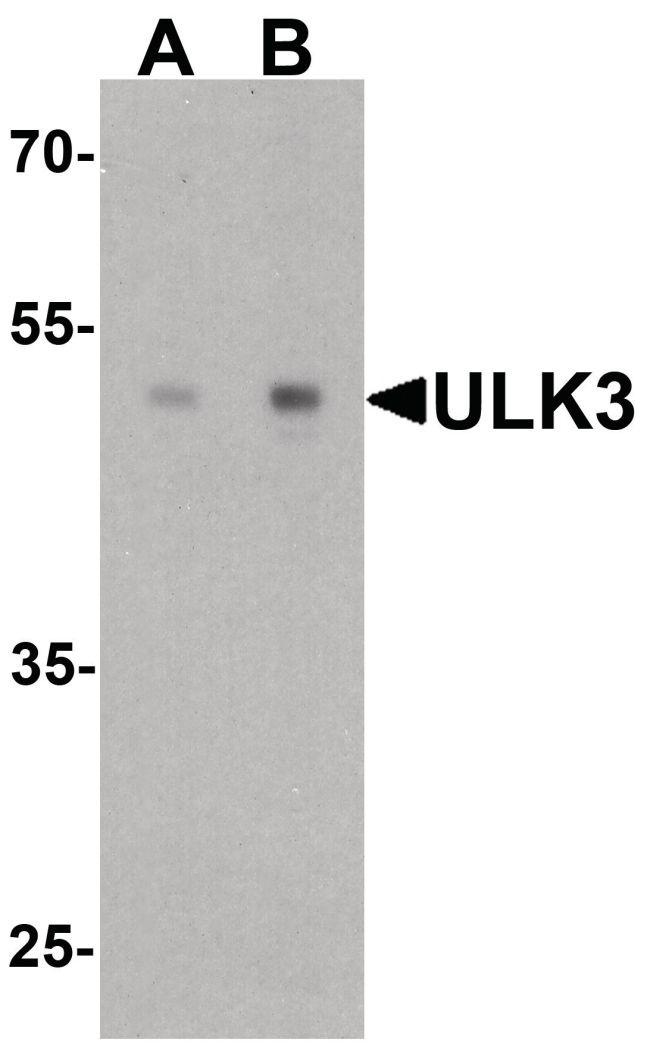 ULK3 Antibody in Western Blot (WB)