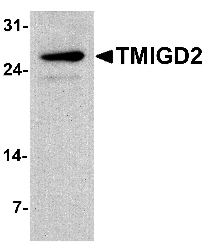 TMIGD2 Antibody in Western Blot (WB)