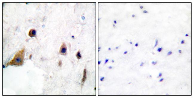 Phospho-DARPP-32 (Thr75) Antibody in Immunohistochemistry (Paraffin) (IHC (P))