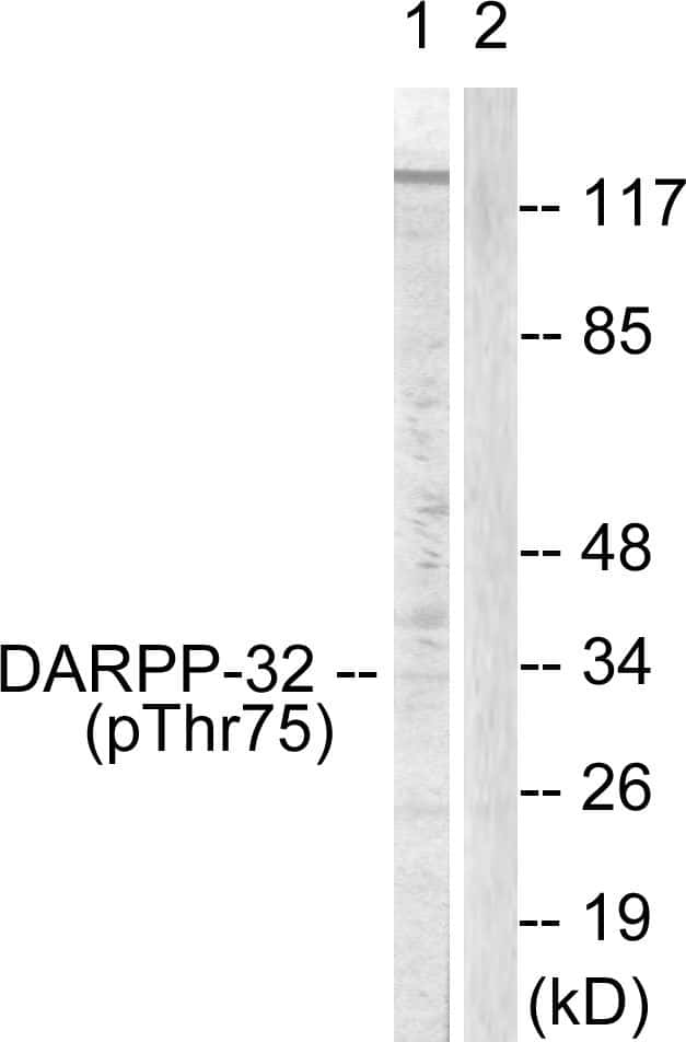 Phospho-DARPP-32 (Thr75) Antibody in Western Blot (WB)