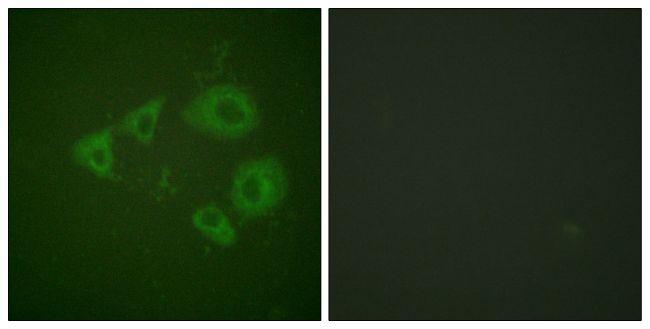 Phospho-TrkB (Tyr705) Antibody in Immunofluorescence (IF)