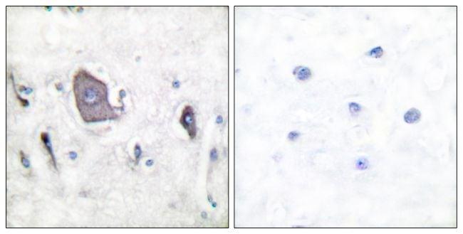 Phospho-TrkB (Tyr705) Antibody in Immunohistochemistry (Paraffin) (IHC (P))