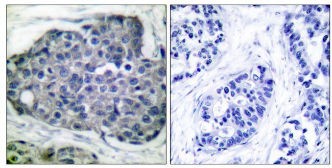 Phospho-Acetyl-CoA Carboxylase (Ser80) Antibody in Immunohistochemistry (Paraffin) (IHC (P))