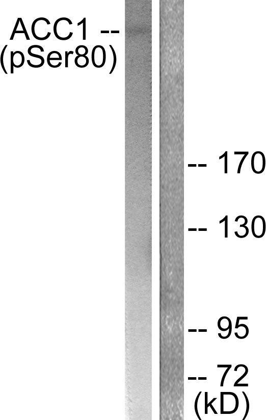 Phospho-Acetyl-CoA Carboxylase (Ser80) Antibody in Western Blot (WB)