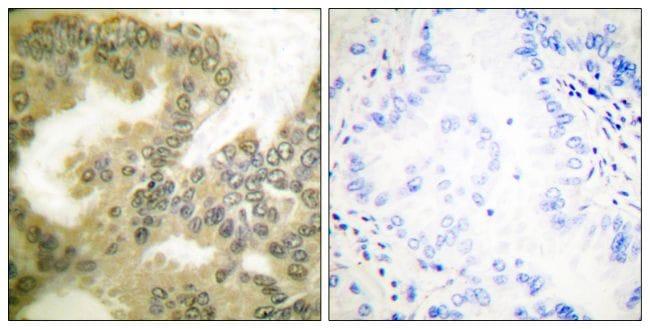 Phospho-Cyclin D3 (Thr283) Antibody in Immunohistochemistry (Paraffin) (IHC (P))