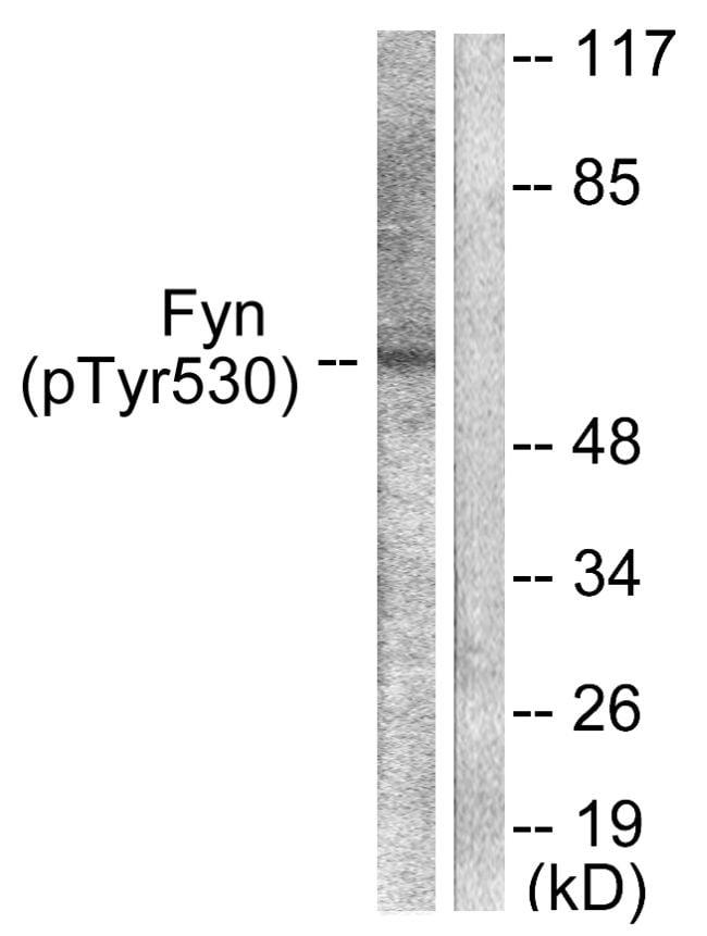 Phospho-Fyn (Tyr530) Antibody in Western Blot (WB)