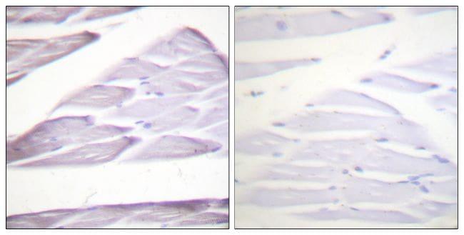 Phospho-IKK alpha/beta (Ser176, Ser177) Antibody in Immunohistochemistry (Paraffin) (IHC (P))