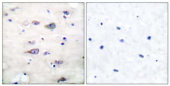 Phospho-GluR2 (Ser880) Antibody in Immunohistochemistry (Paraffin) (IHC (P))