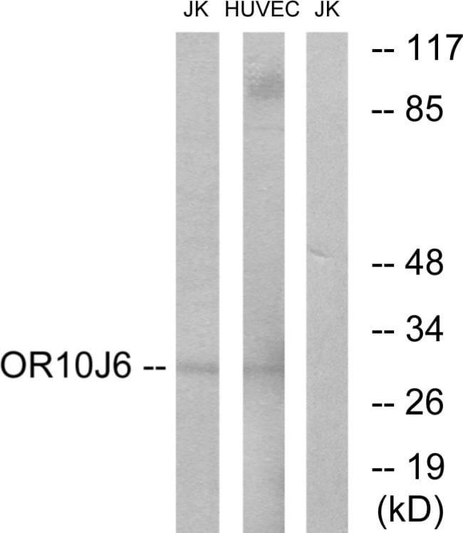 OR10J6P Antibody in Western Blot (WB)