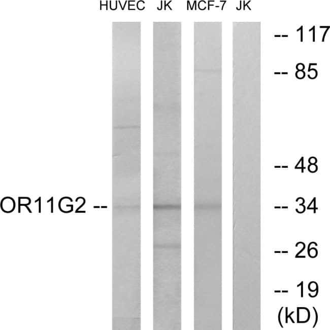 OR11G2 Antibody in Western Blot (WB)
