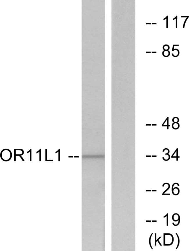 OR11L1 Antibody in Western Blot (WB)