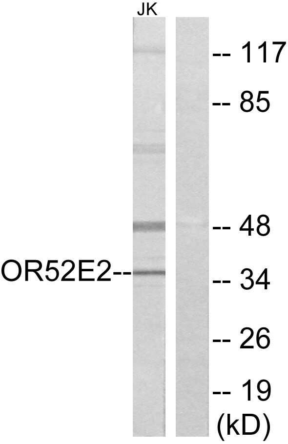 OR52E2 Antibody in Western Blot (WB)