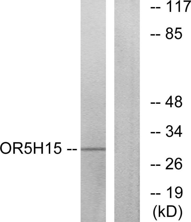 OR5H15 Antibody in Western Blot (WB)
