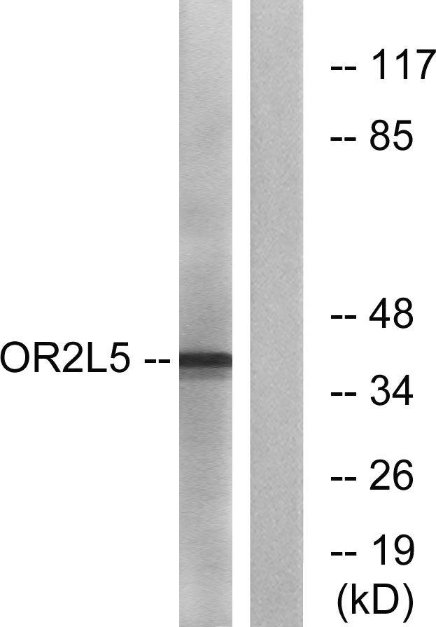 OR2L5 Antibody in Western Blot (WB)