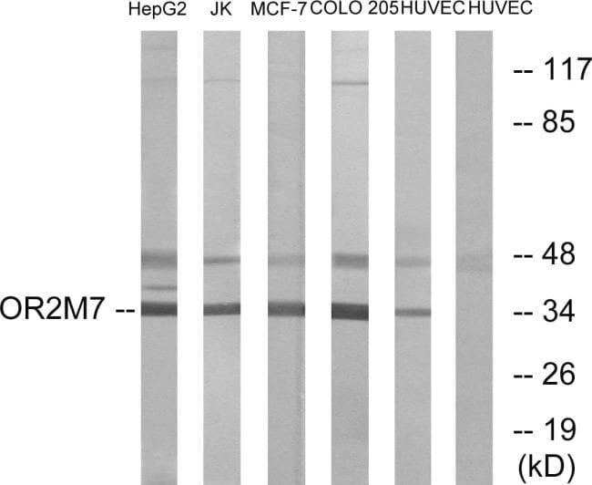 OR2M7 Antibody in Western Blot (WB)