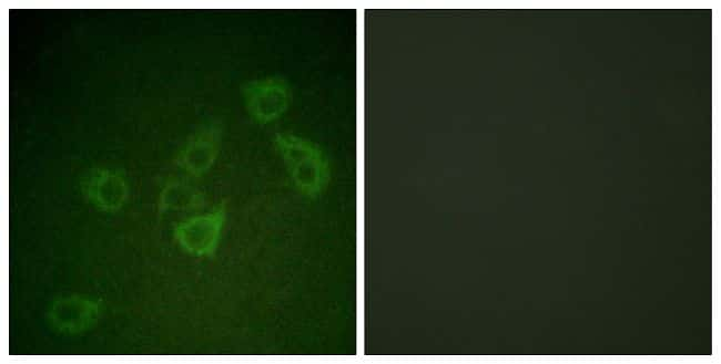 Phospho-Caspase 6 (Ser257) Antibody in Immunofluorescence (IF)