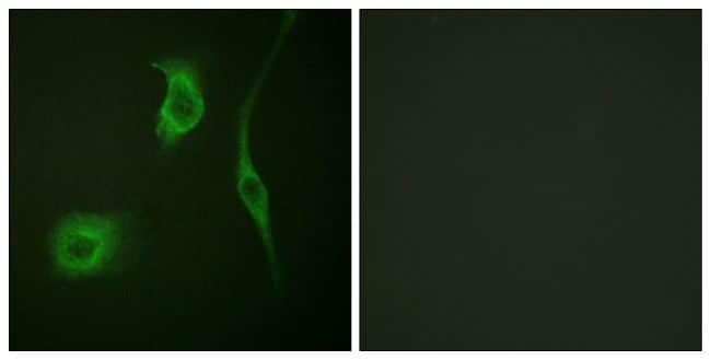 Phospho-HSP20 (Ser16) Antibody in Immunofluorescence (IF)