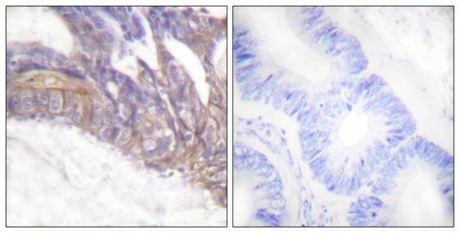 Phospho-LAT (Tyr191) Antibody in Immunohistochemistry (Paraffin) (IHC (P))