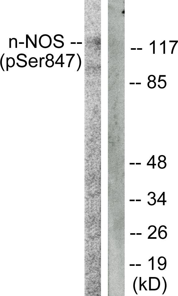 Phospho-nNOS (Ser852) Antibody in Western Blot (WB)