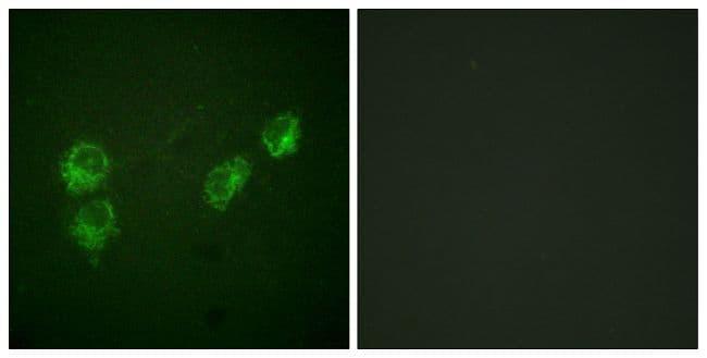 Phospho-Phospholamban (Ser16, Thr17) Antibody in Immunofluorescence (IF)