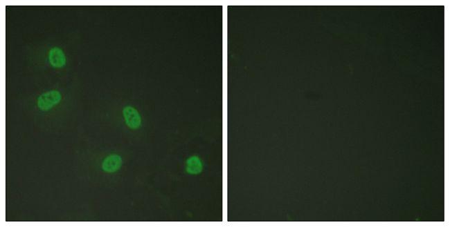 Phospho-TRAP220 (Thr1457) Antibody in Immunofluorescence (IF)