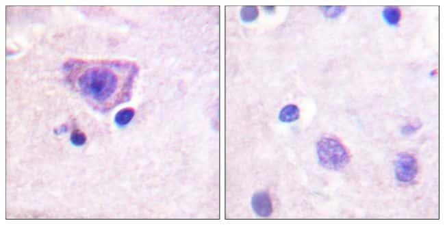 Phospho-RyR2 (Ser2808) Antibody in Immunohistochemistry (Paraffin) (IHC (P))