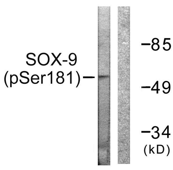 Phospho-SOX9 (Ser181) Antibody in Western Blot (WB)