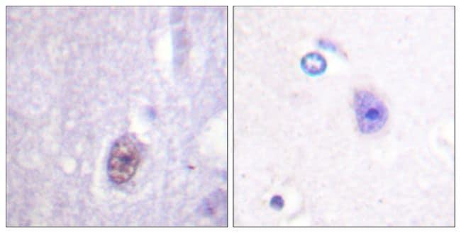 Phospho-SP1 (Thr453) Antibody in Immunohistochemistry (Paraffin) (IHC (P))