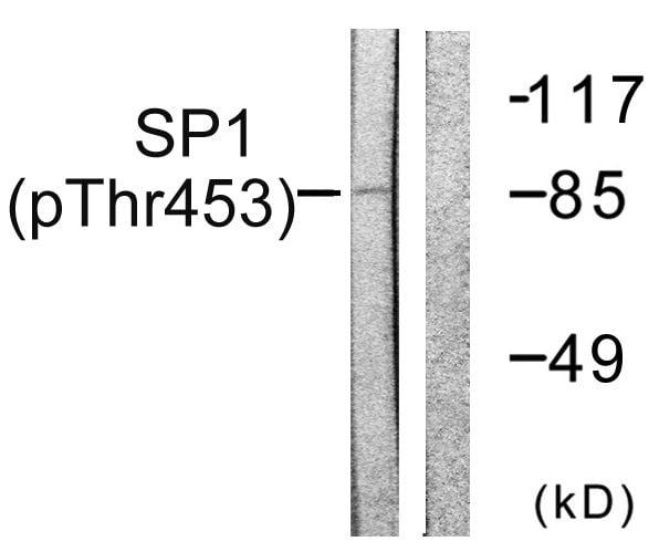 Phospho-SP1 (Thr453) Antibody in Western Blot (WB)