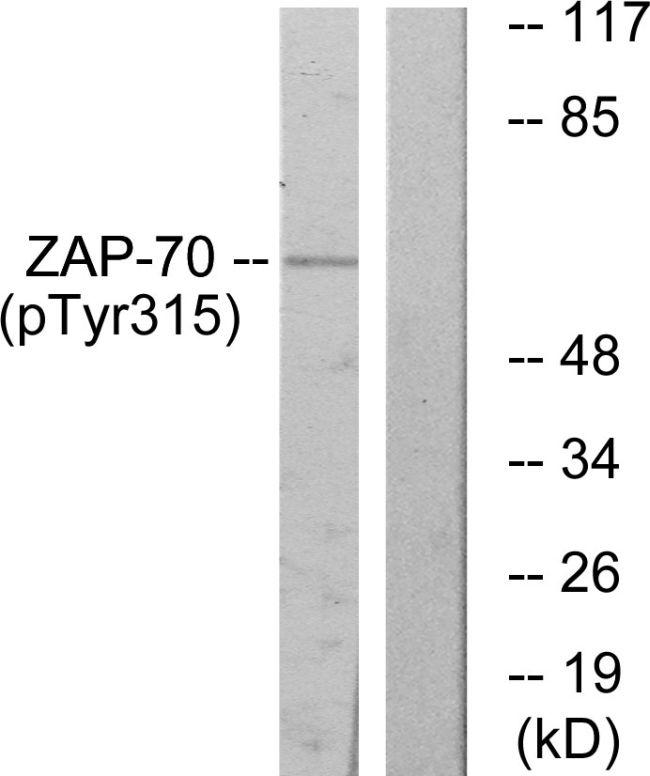 Phospho-Zap-70 (Tyr315) Antibody in Western Blot (WB)