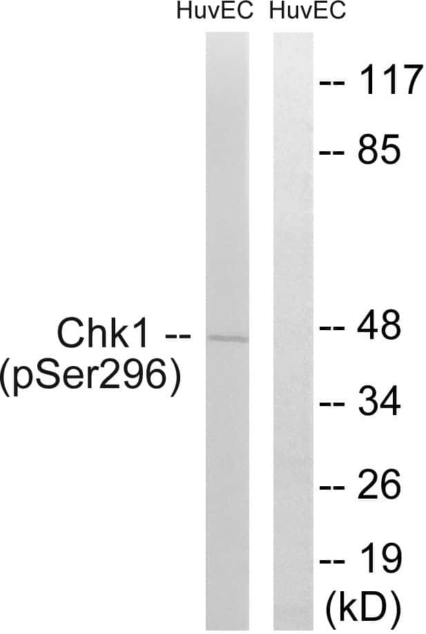 Phospho-CHK1 (Ser296) Antibody in Western Blot (WB)