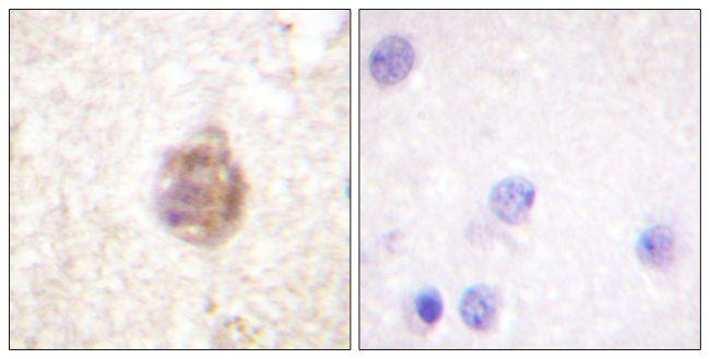 Phospho-IRS1 (Ser794) Antibody in Immunohistochemistry (Paraffin) (IHC (P))