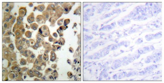 Phospho-PKC delta (Thr505) Antibody in Immunohistochemistry (Paraffin) (IHC (P))