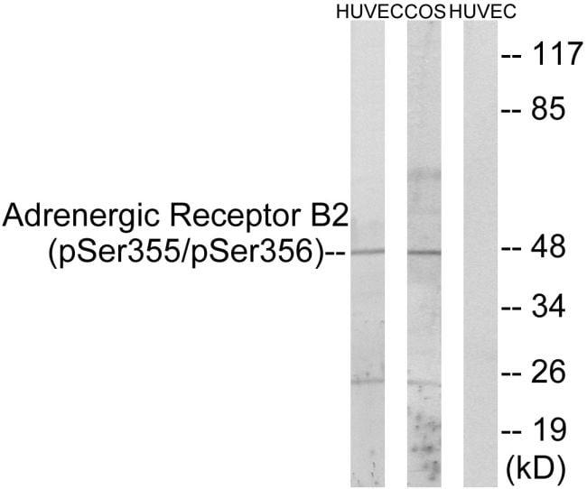 Phospho-beta-2 Adrenergic Receptor (Ser355, Ser356) Antibody in Western Blot (WB)
