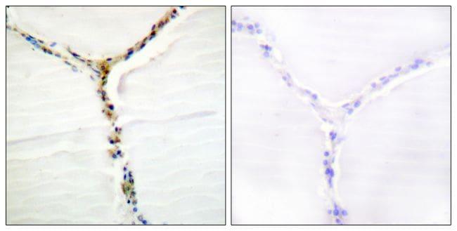 Phospho-AHR (Ser36) Antibody in Immunohistochemistry (Paraffin) (IHC (P))