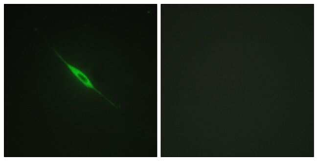 Phospho-PKC delta (Tyr52) Antibody in Immunofluorescence (IF)