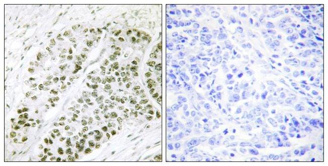 Phospho-ATF2 (Ser480) Antibody in Immunohistochemistry (Paraffin) (IHC (P))