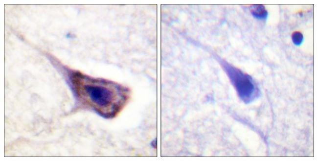 Phospho-BAD (Ser134) Antibody in Immunohistochemistry (Paraffin) (IHC (P))