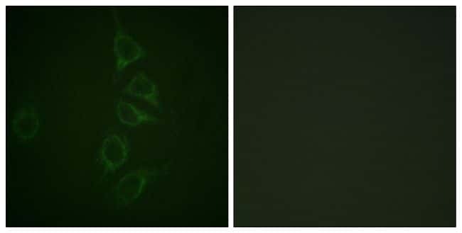 Phospho-Calmodulin (Thr79, Ser81) Antibody in Immunofluorescence (IF)