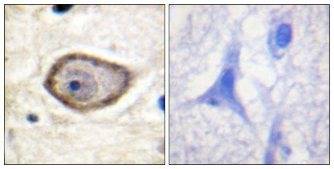 Phospho-CD142 (Ser290) Antibody in Immunohistochemistry (Paraffin) (IHC (P))
