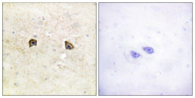 EphB1/EphB2 Antibody in Immunohistochemistry (Paraffin) (IHC (P))
