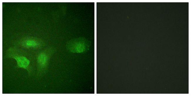 Phospho-HDAC6 (Ser22) Antibody in Immunofluorescence (IF)