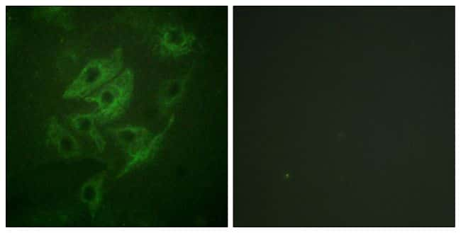 NMDAR2A/NMDAR2B Antibody in Immunofluorescence (IF)